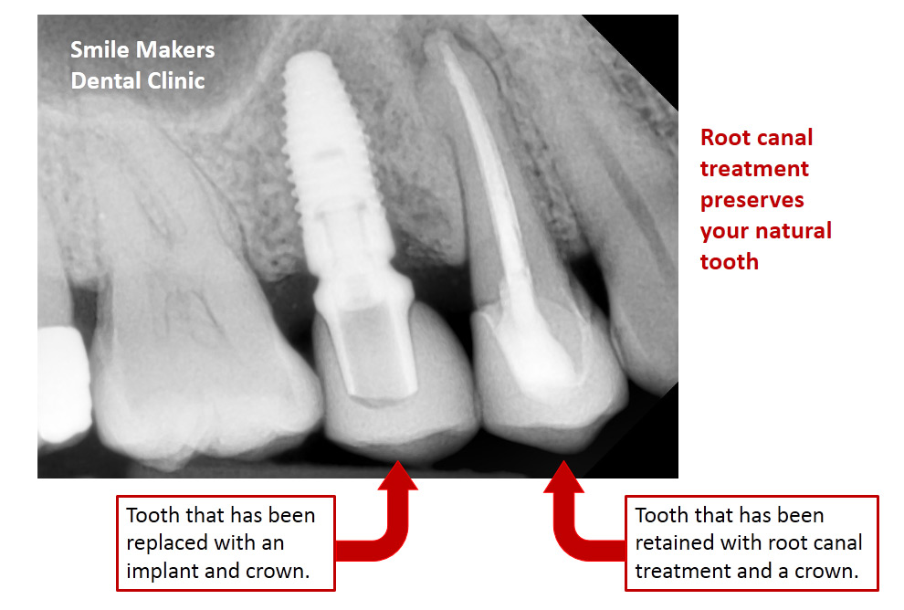 Smile Makers | Root Canal Treatment FAQ