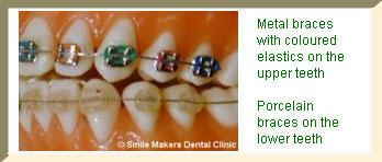 Metal braces with coloured elastics