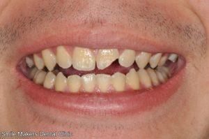 restoring-chipped-broken-teeth